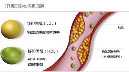 「好」膽固醇高密度脂蛋白水平,預測心血管疾病可靠嗎? - 每日頭條