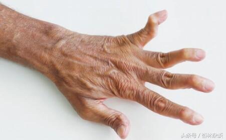 一樣的關節炎。不一樣的病。關節痛不一定是風濕。你分得清嗎 - 每日頭條