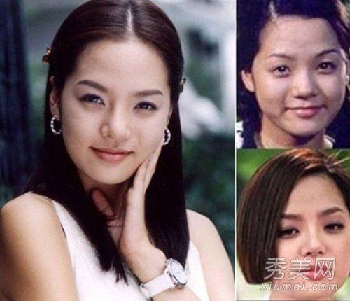 揭韓國女星整容前後對比照:樸敏英李多海變化最大 - 每日頭條