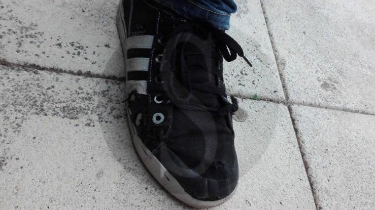 I segni dei morsi sulla scarpa del ragazzo aggredito