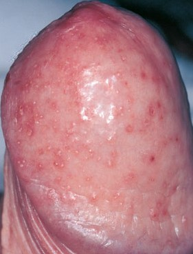 diabetes and balanitis pictures
