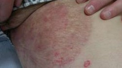 fungal infection tinea cruris jock itch daad ayurvedic treatment