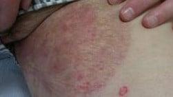 fungal infection tinea cruris jock itch daad ayurvedic treatment