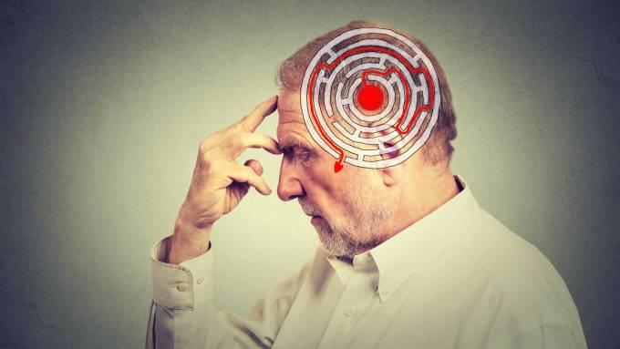 Alzheimer Kafa Karışıklığı
