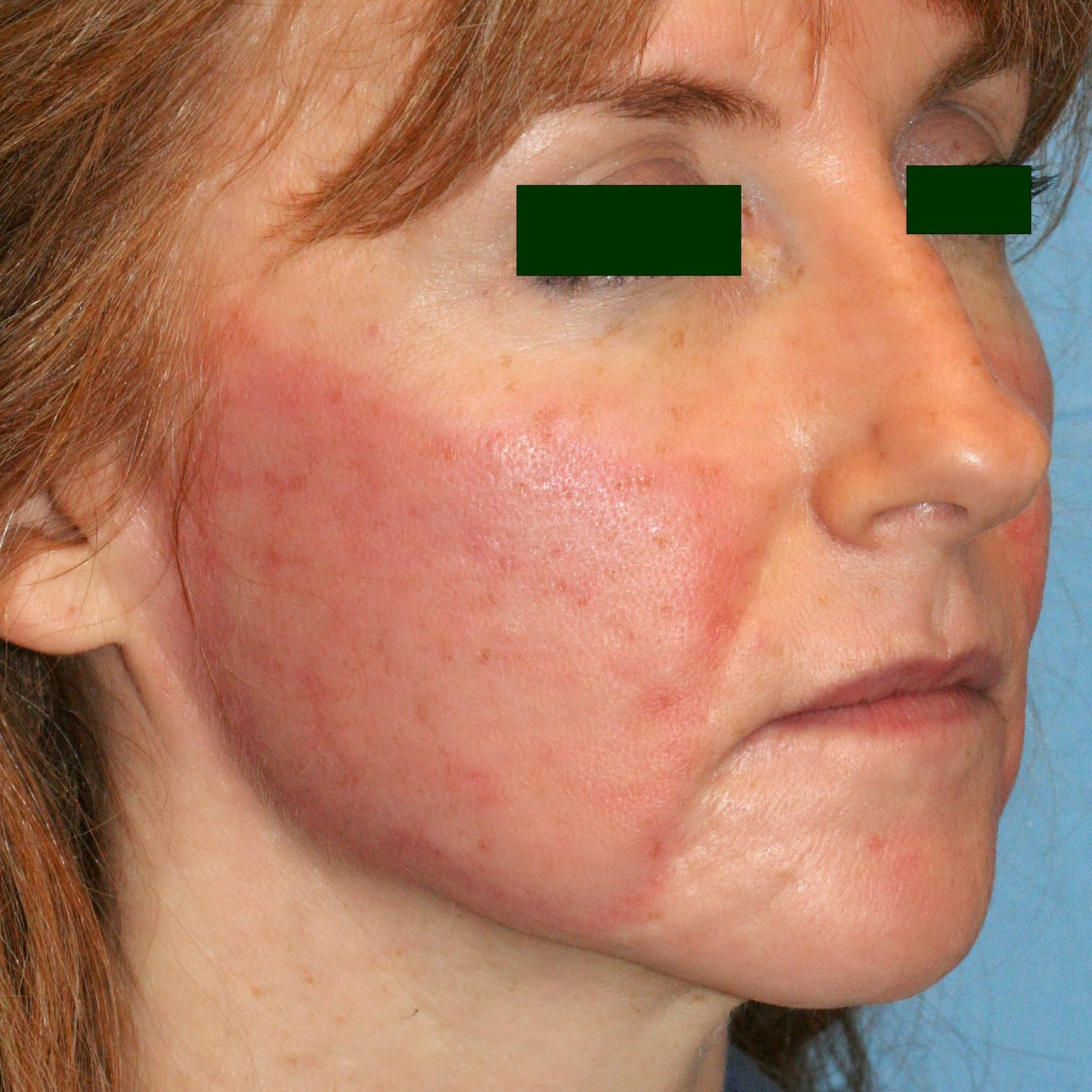 Laser Hair Removal Sifa S Corner