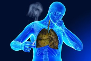 milyen fáj a szív a dohányzástól hatékony tabletták a dohányzáshoz új