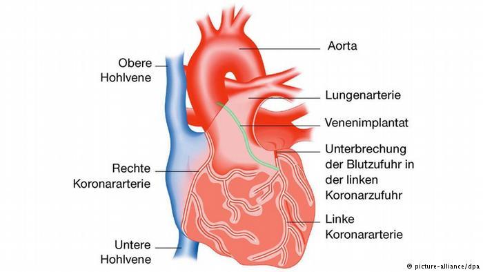 الخلايا المحفزة لنبض القلب
