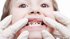 """مرض """"الأسنان الطباشيرية"""" : النصائح للوقاية منه"""