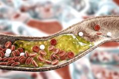 كيف تخفض الكولسترول دون أدوية؟