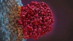 الجهاز الهضمي – متى يكون مغص البطن علامة على الإصابة المحتملة بسرطان الأمعاء؟