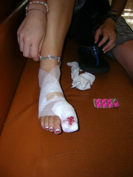 Bre's toenail removed oucheeeeeee