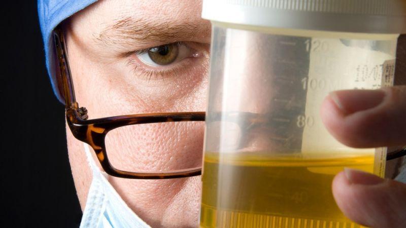 Photo of Proses Pembentukan Urine Secara Singkat