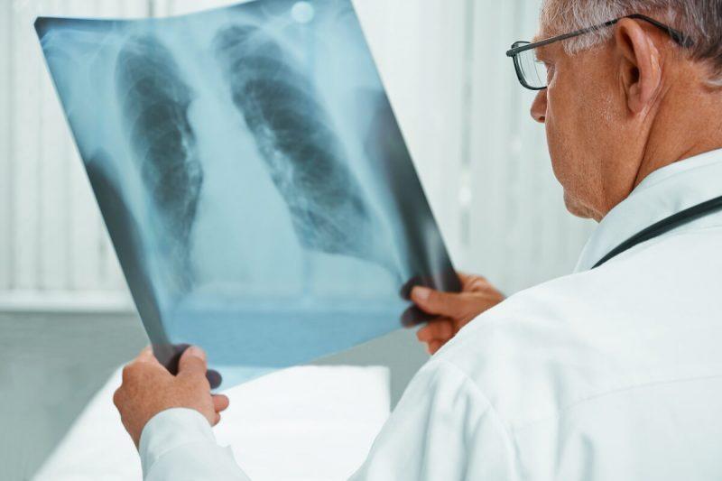 Diagnosa penyakit paru-paru basah