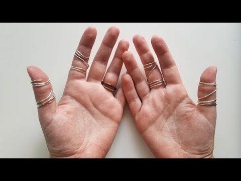 DIY Ring Splints