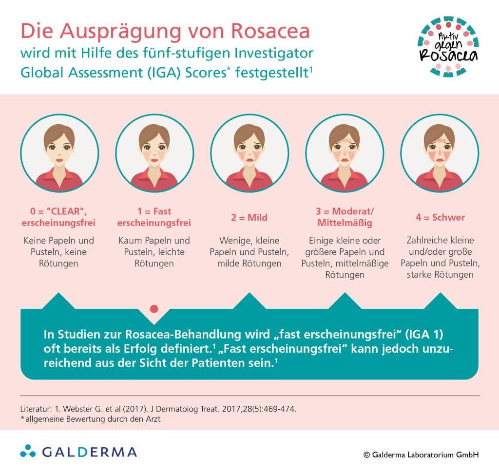 """Die Ausprägung von Rosacea wird in fünf Stufen unterteilt - CLEAR steht für """"erscheinungsfrei""""."""