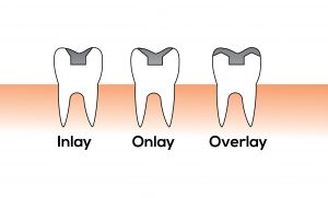 dental crowns inlay onlay overlay