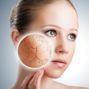 dry-facial-skin