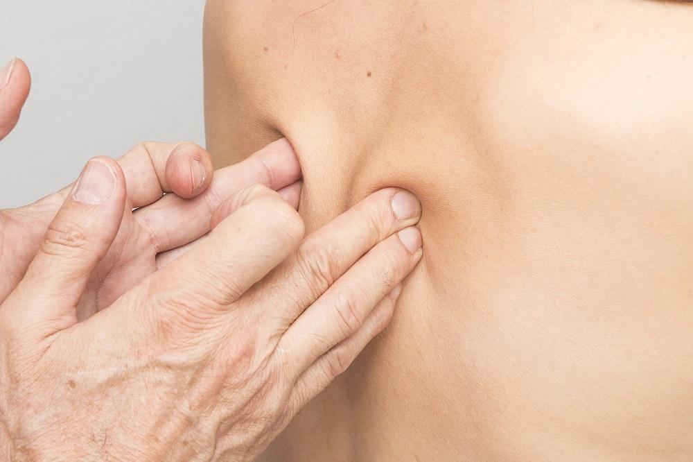 Massotherapie Trigger Points