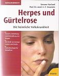 Herpes und Gürtelrose