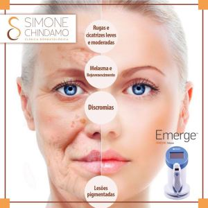 Laser Emerge Simone Chindamo