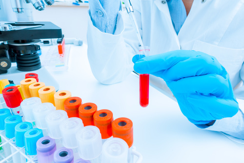 Genetic Testing | Tampa Bay | Simon Wellness Consulting