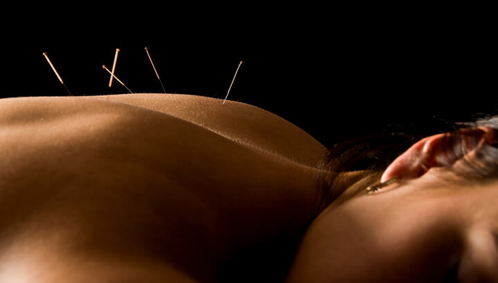 Acupuncture or Morphine? What do you Choose?