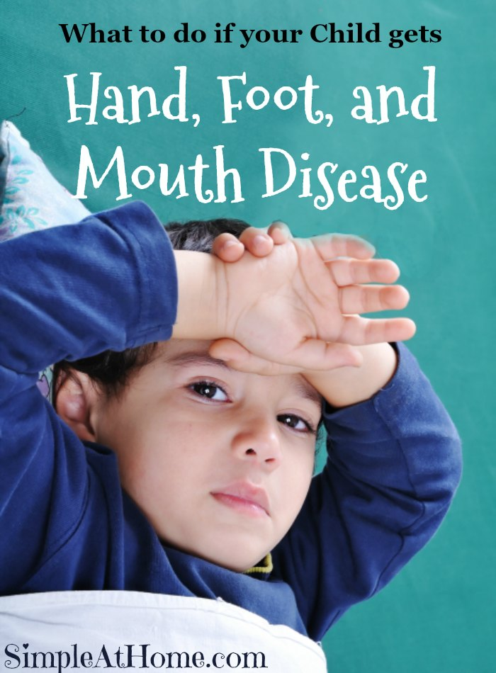 What to do if your Child gets Hand, Foot, and Mouth Disease