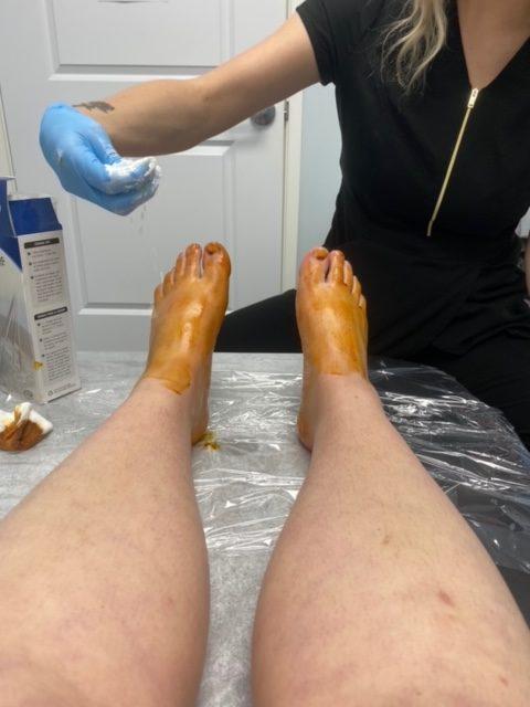 Nurse Applying Iodine Corn Starch Test for Botox for Hyperhidrosis