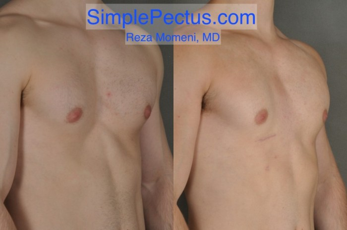 SIMPLE Pectus excavatum surgery - Before and After Results