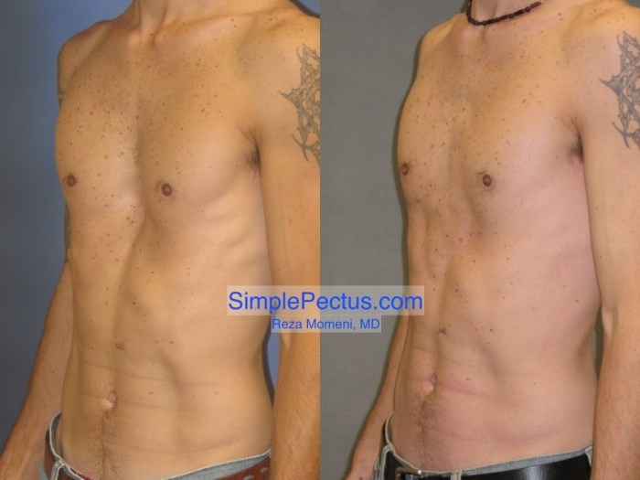 SIMPLE Pectus Excavatum Repair in think athletic male