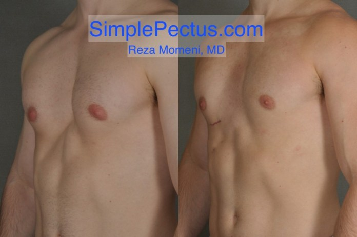 Athletic male after SIMPLE Pectus Repair
