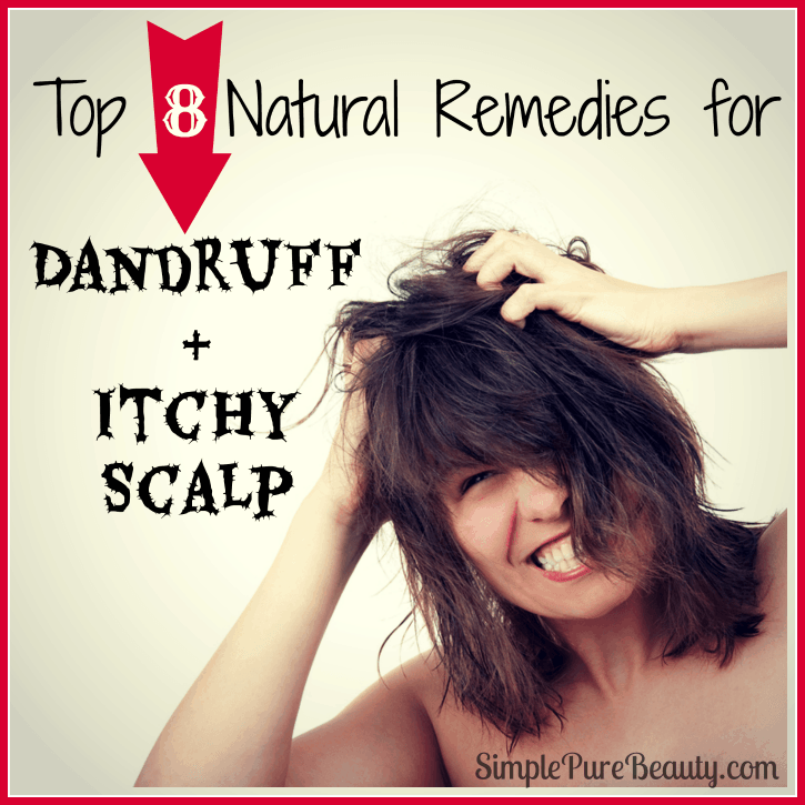 Top 8 Natural Home Remedies for Dandruff and Itchy Scalp ...