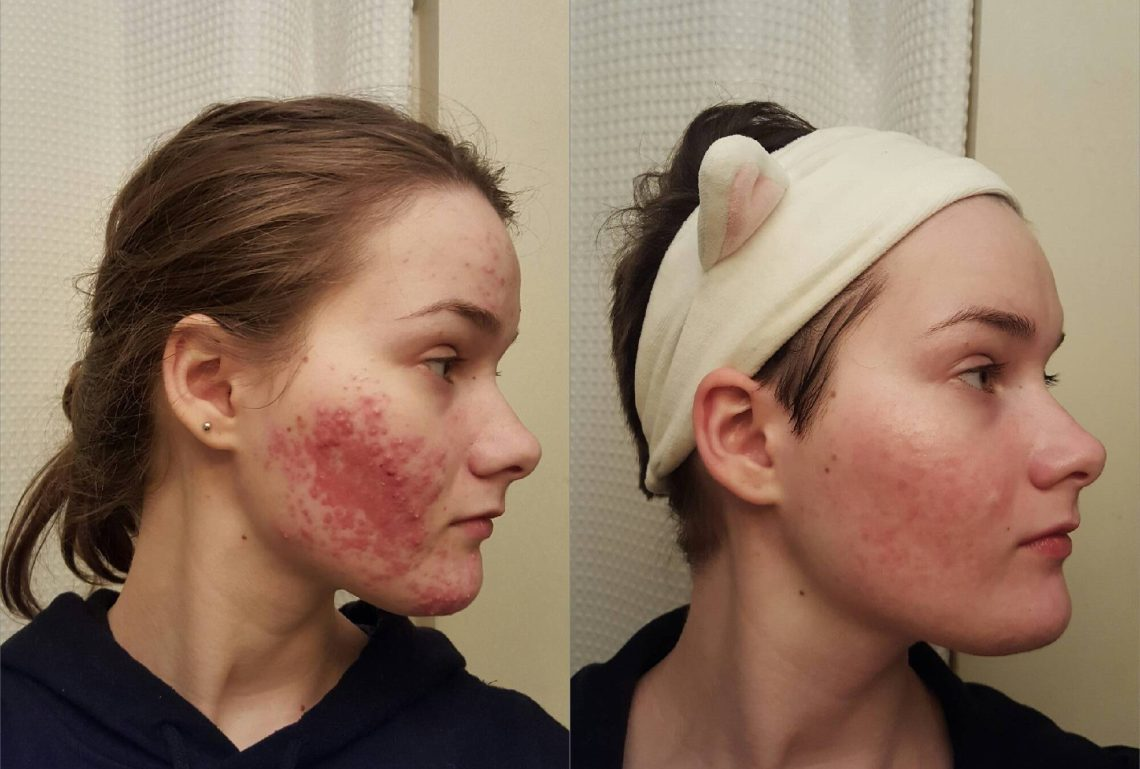 Image Result For How To Use Tea Tree Oil On Face
