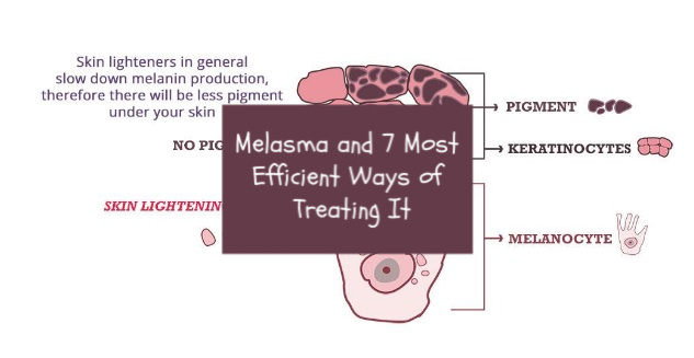Melasma and 7 Most Efficient Ways of Treating It