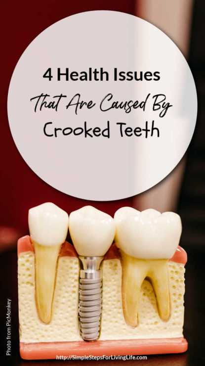 4 Health Issues That Are Caused By Crooked Teeth