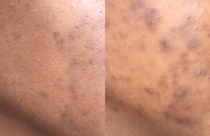 How I Cleared My Adult Cystic Acne