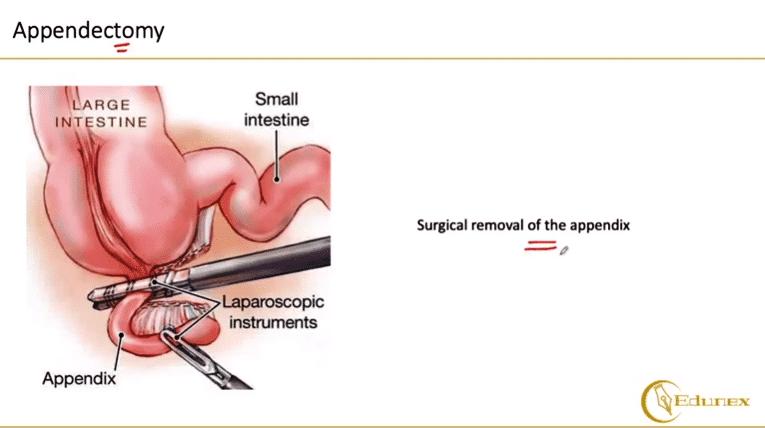 Appendectomy Appendicits Symptoms