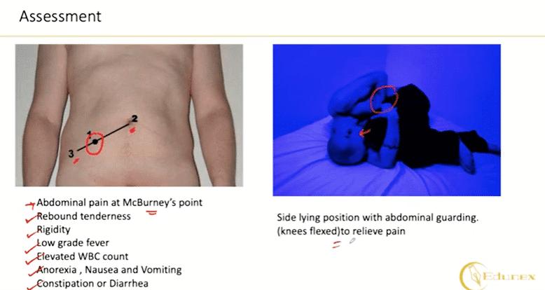Assessment Appendicitis
