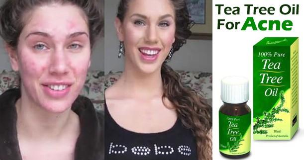 Tea Tree Oil To Remove Pimple