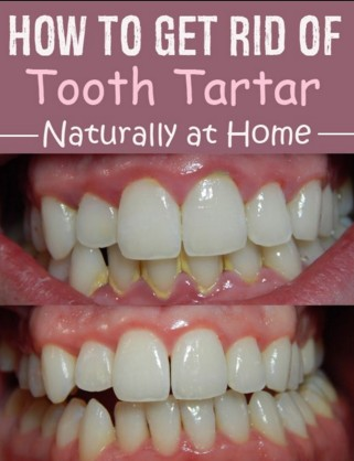 Without Going To Dentist: Remedies Remove Plaque And Tartar From ...