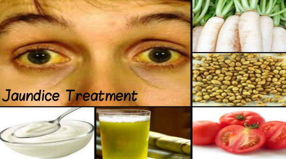 Effective Home Remedies For Jaundice Causes Symptoms Diet - Best home remedies for jaundice its causes and symptoms