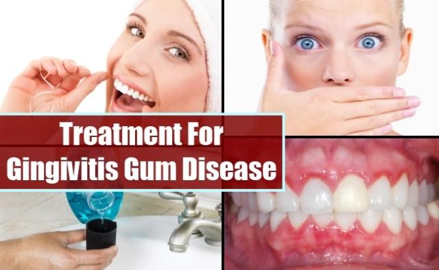 treatment for gingivitis