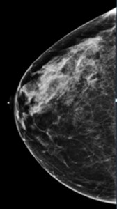 2D Mammography image