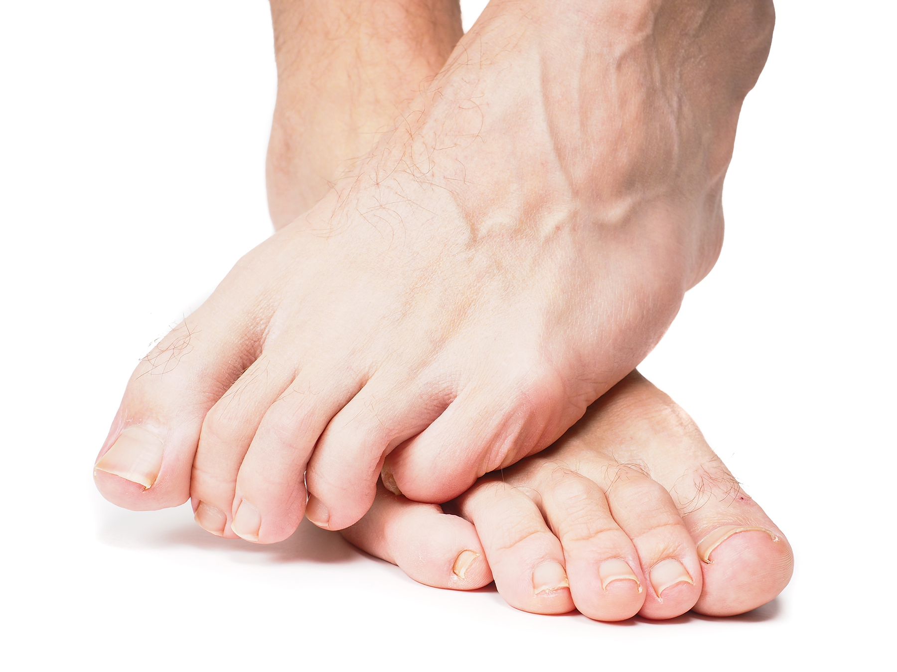 18 Ways to Keep Diabetic Feet Healthy – Simply Well