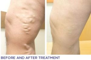 varicose vein before and after