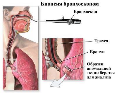 švokštimas su hipertenzija