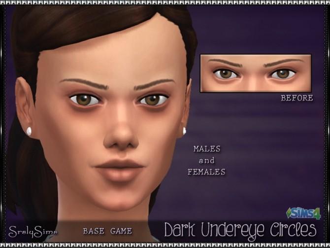 Dark Undereye Circles