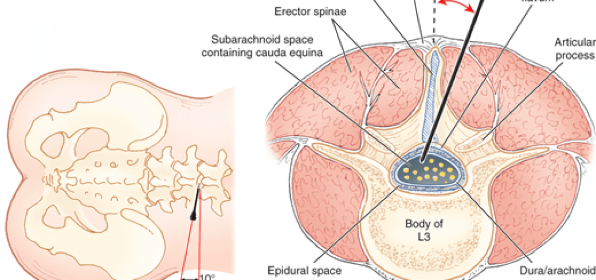 lumbar puncture diagram 22re ecu wiring lateral sinaiem