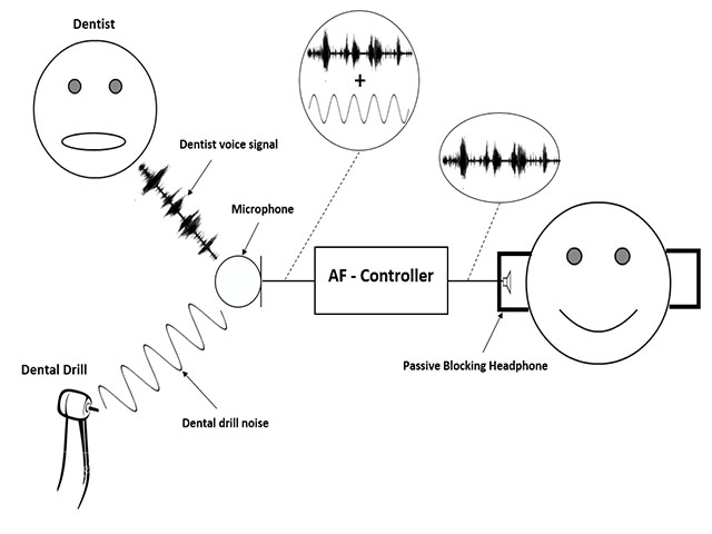Noise Cancelling Microphone Schematic Bluetooth Microphone