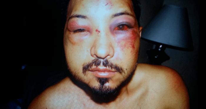 El rostro del Beltrán quedó así tras el arresto. Foto: La Opinión